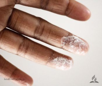 hand with flour on fingertips